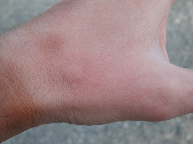 sandfly bite